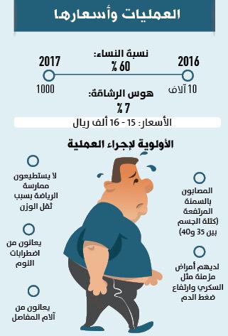 11 ألف عملية تكميم معدة لسعوديين بمستشفى أردني جريدة الوطن السعودية