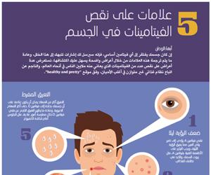 5 علامات على نقص الفيتامينات في الجسم